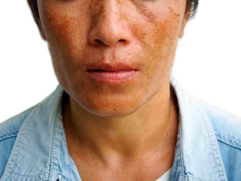 Melasma Dermatology Plastic Surgery In Palm Desert Ca Plastic
