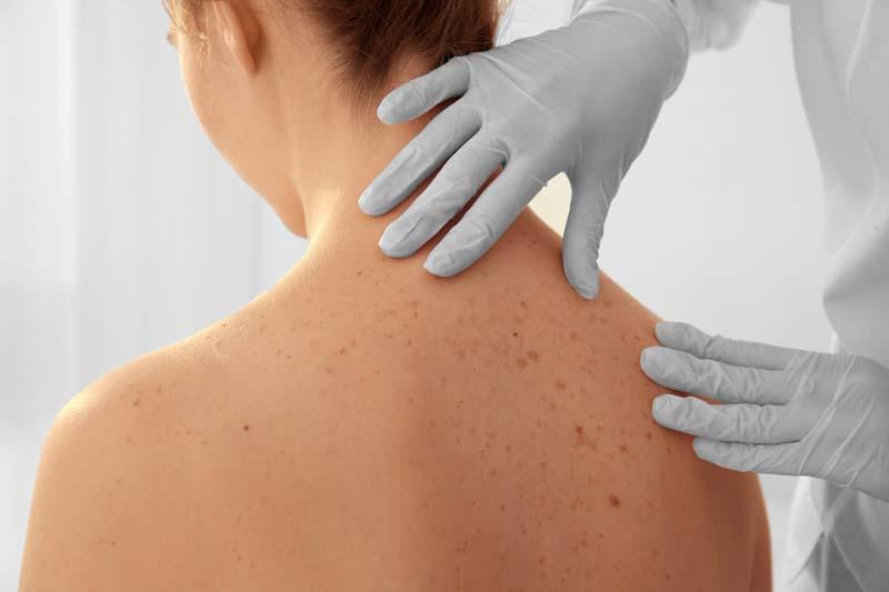 Skin Cancer Treatments Dermatology Plastic Surgery In Palm Desert Ca Plastic Surgeon In Palm Desert Ca