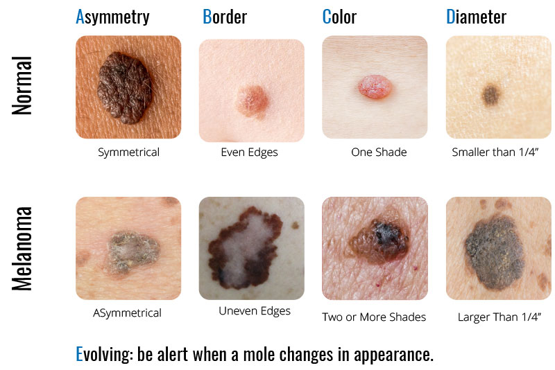 pictures of skin cancer - 800×534